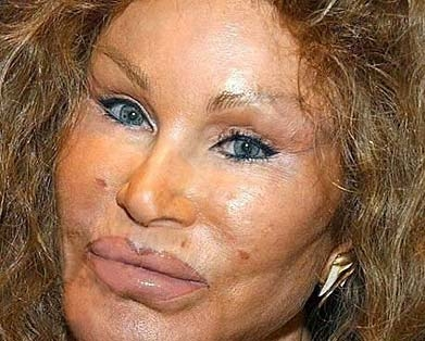 plastic surgery gone wild
