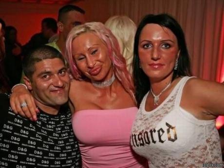 Plastic Surgery Victim