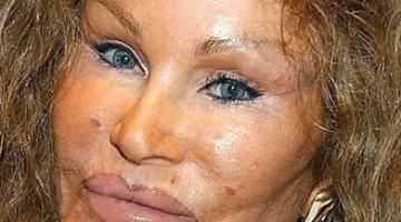 plastic surgery gone wild